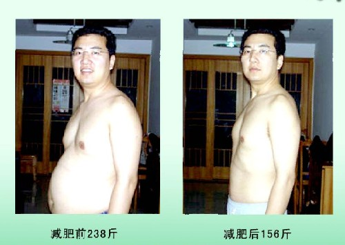 减肥案例六