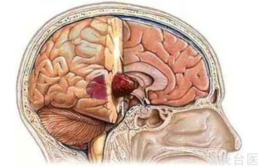 硼中子俘獲治療 | BNCT治療惡性腦腫瘤